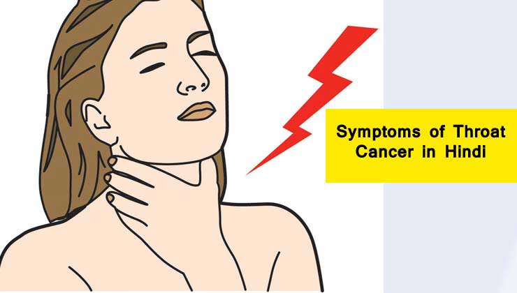 (symptoms of throat cancer)