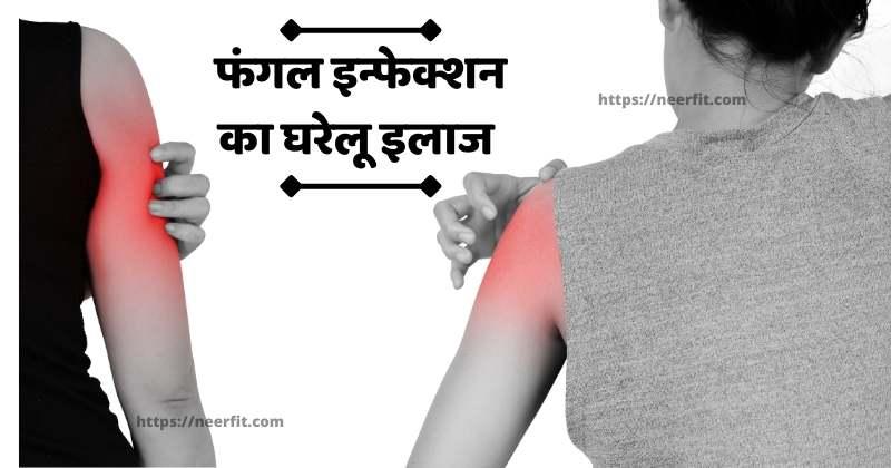 fungal infection ka ilaj in hindi