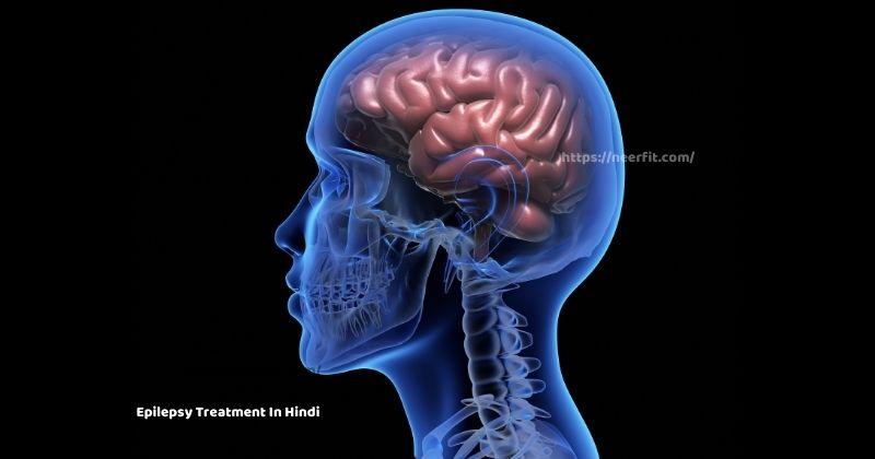 Epilepsy Treatment in Hindi