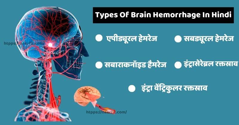 Types of Brain Hemorrhage in Hindi